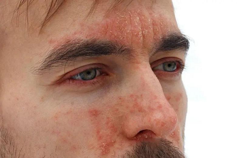 Dermatita la ochi - eczema palebrala